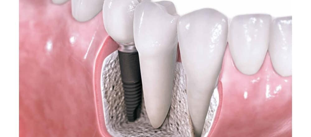 dental-implants-living