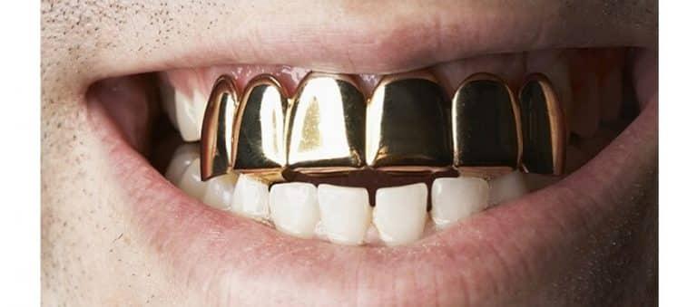 gold-teeth